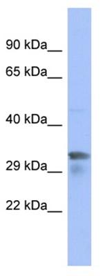 Western blot - PIM1 antibody (ab94603)