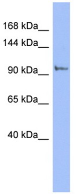 Western blot - PI4 kinase beta antibody (ab94604)