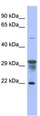Western blot - PMM1 antibody (ab94606)