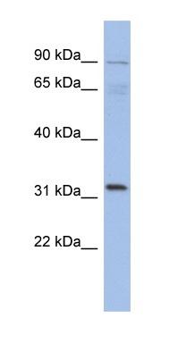 Western blot - TBC1D14 antibody (ab94609)