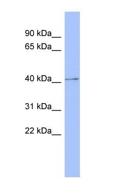Western blot - PKA regulatory subunit I beta antibody (ab94613)