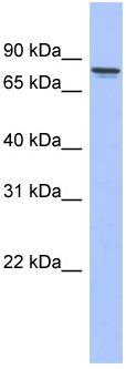 Western blot - PKC gamma antibody (ab94614)