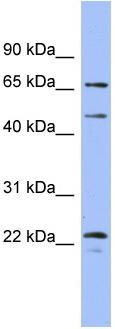 Western blot - MAPK4 antibody (ab94617)