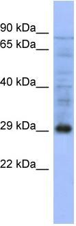Western blot - Proteasome 20S alpha 5 antibody (ab94621)