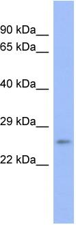 Western blot - Proteasome 20S beta 6 antibody (ab94622)