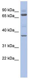 Western blot - MTF2 antibody (ab94629)