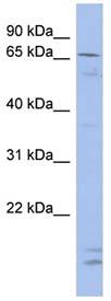 Western blot - SIM2 antibody (ab94630)