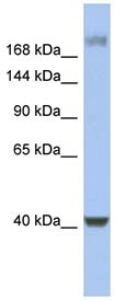 Western blot - Host Cell Factor C1 antibody (ab94631)