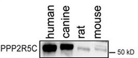 Western blot - Anti-PPP2R5C antibody (ab94633)