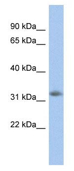Western blot - Neugrin antibody (ab94635)