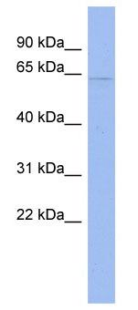 Western blot - CDKN2AIP antibody (ab94636)