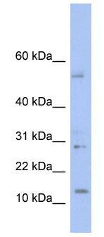 Western blot - TDI antibody (ab94637)