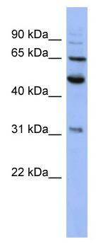 Western blot - Anti-Proteasome 26S S3 antibody (ab94641)