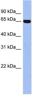 Western blot - TRIM47 antibody (ab94646)