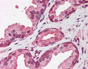 Immunohistochemistry (Formalin/PFA-fixed paraffin-embedded sections)-Anti-Pentraxin 3 antibody(ab94649)