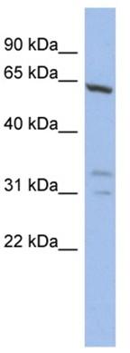 Western blot - GTF2F1 antibody (ab94651)