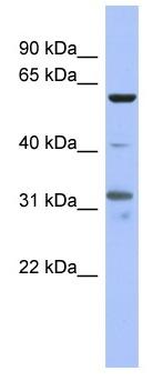 Western blot - PAX8 antibody (ab94655)