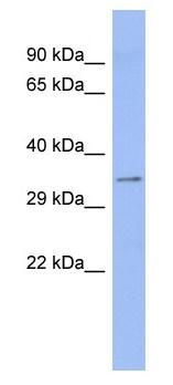 Western blot - Aspartate beta hydroxylase antibody (ab94660)