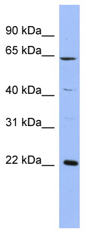 Western blot - NCS1 antibody (ab94662)