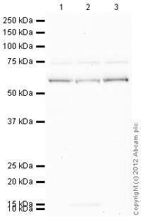 Western blot - Anti-EAAT2 antibody (ab94667)