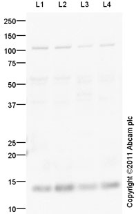 Western blot - p15 INK4b antibody (ab94688)