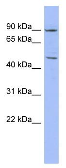 Western blot - ZNF569 antibody (ab94699)