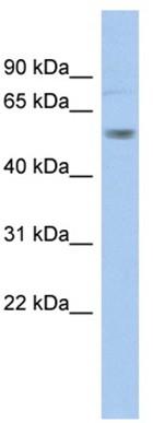 Western blot - Kv1.1 potassium channel antibody (ab94701)