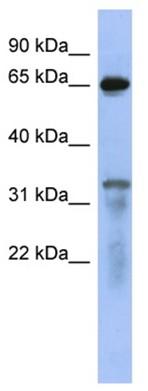 Western blot - RAP1GAP antibody (ab94721)