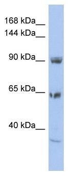 Western blot - TPCN1 antibody (ab94731)