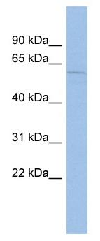Western blot - Mucolipin 3 antibody (ab94732)