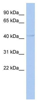 Western blot - PSMD11 antibody (ab94745)