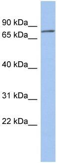 Western blot - ZNF195 antibody (ab94758)