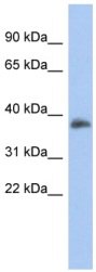 Western blot - FOXB1 antibody (ab94759)