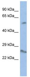 Western blot - VENTX antibody (ab94761)