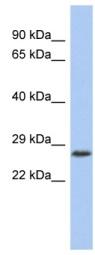 Western blot - VENTX antibody (ab94762)