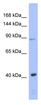 Western blot - Argonaute 3 / eIF2C 3 antibody (ab94781)