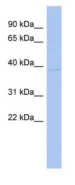 Western blot - SCDGFB antibody (ab94782)