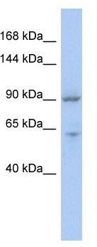 Western blot - MLX-interacting protein antibody (ab94783)