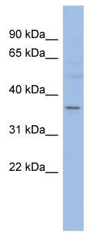 Western blot - HMGCLL1 antibody (ab94787)
