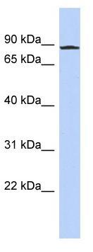 Western blot - ANKZF1 antibody (ab94790)