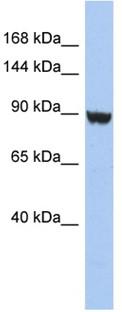 Western blot - KCNH6 antibody (ab94797)