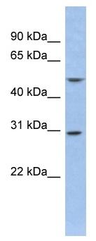 Western blot - KChIP2 antibody (ab94823)