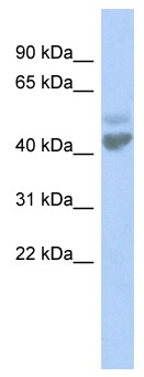 Western blot - LGICZ1 antibody (ab94825)