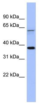 Western blot - MAGEB1 antibody (ab94842)