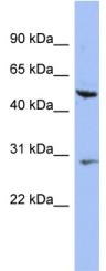 Western blot - KRT75 antibody (ab94853)