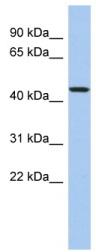 Western blot - PDCD7 antibody (ab94855)