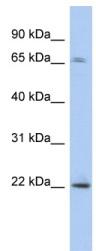 Western blot - PDAP1 antibody (ab94858)
