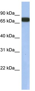 Western blot - GNL3L antibody (ab94862)