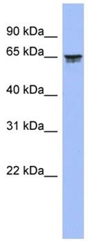 Western blot - LZTS2 antibody (ab94864)