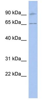 Western blot - RASGRP2 antibody (ab94865)